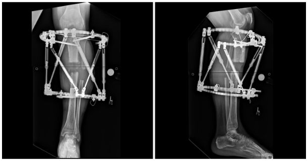 Limb Salvage X-Ray