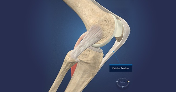 patellar-tendon-blog