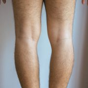 Man with bowlegs