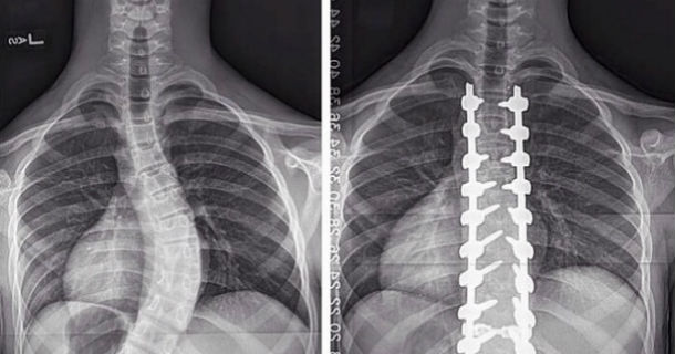 before and after spine x-rays