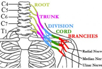 Brachial plexus diagram showing radial, median and ulnar nerves