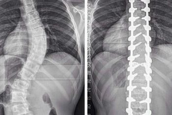 Before and After Spine