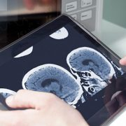 Analyzing brain scan